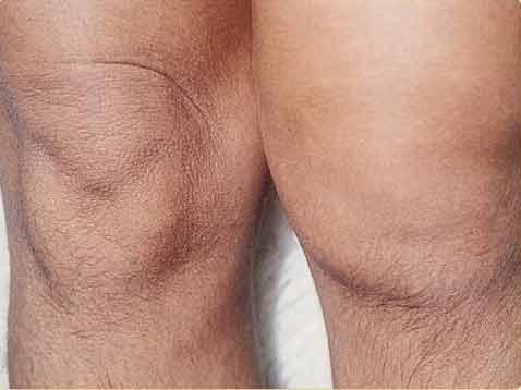 reuma artrose resveratrol