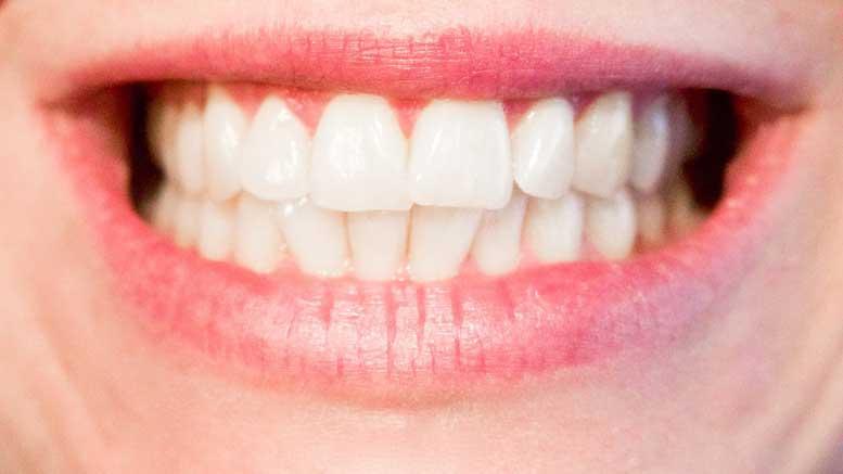 tanden bleken methodes