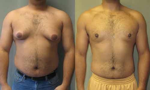 borstvorming bij mannen hoog prolactine