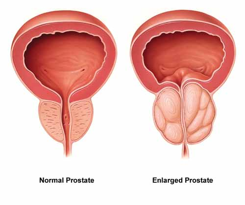 prostaat lignanen